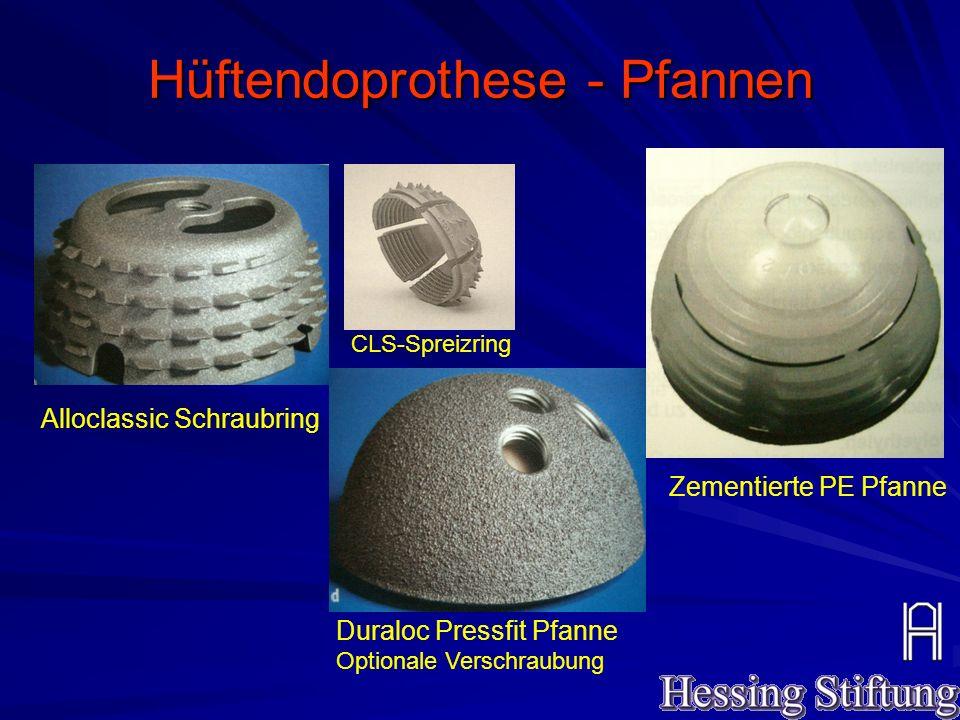Hüftendoprothese - Pfannen Alloclassic Schraubring Duraloc Pressfit Pfanne Optionale Verschraubung Zementierte PE Pfanne CLS-Spreizring