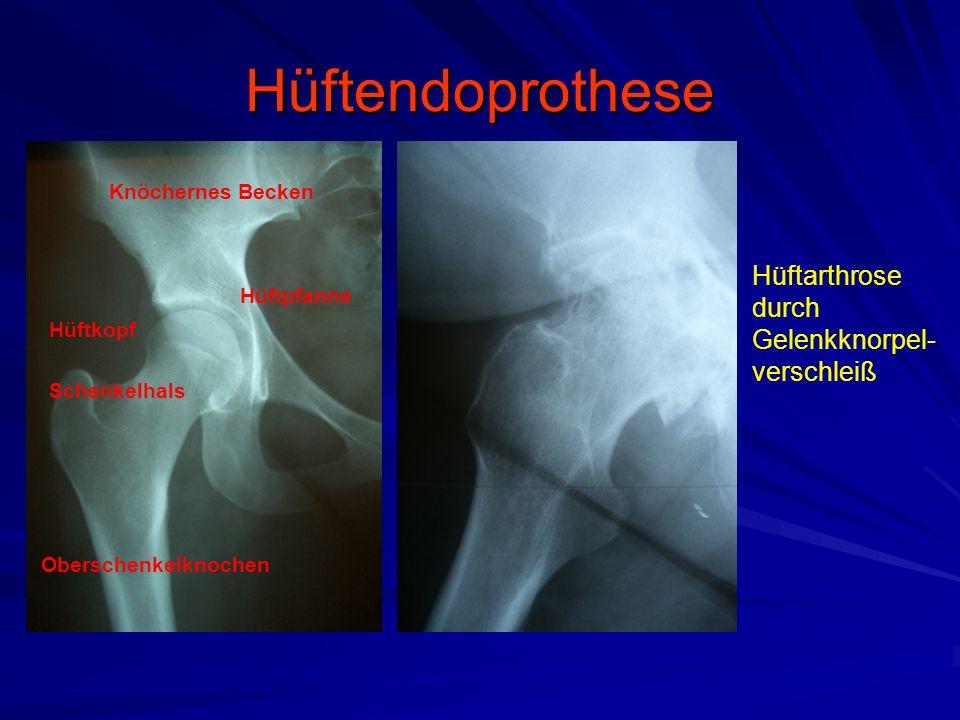 Hüftendoprothese Schenkelhalsbruch