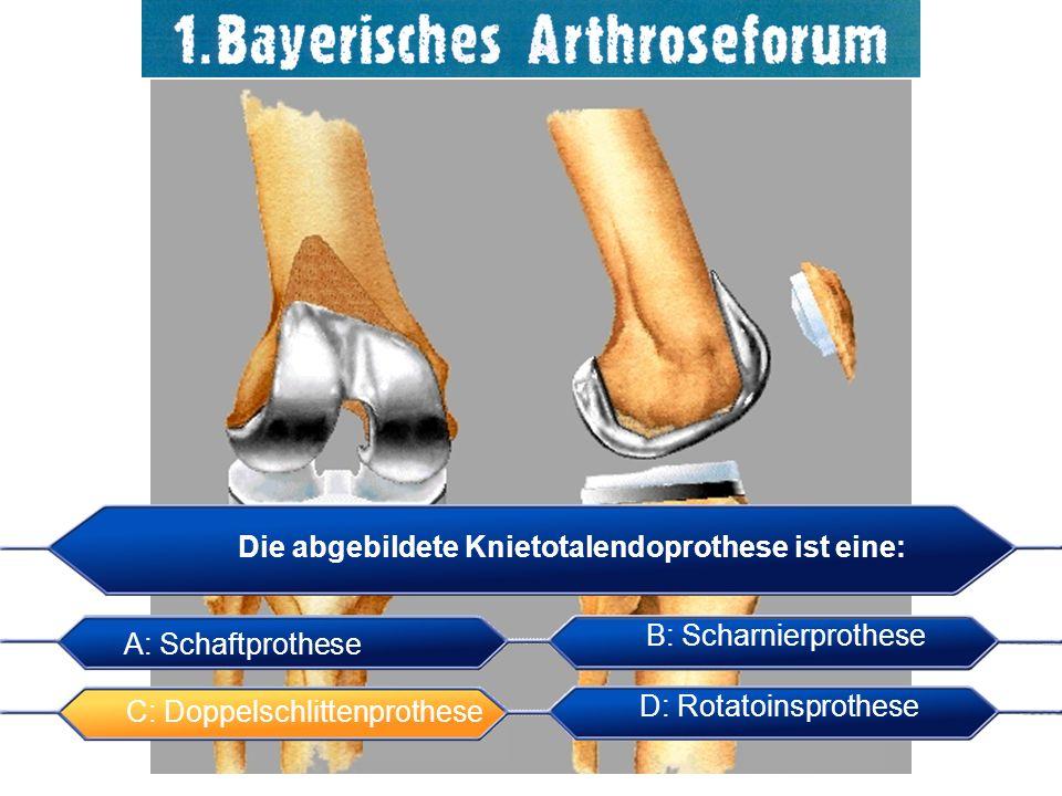 Die abgebildete Knietotalendoprothese ist eine: A: Schaftprothese B: Scharnierprothese C: Doppelschlittenprothese D: Rotatoinsprothese