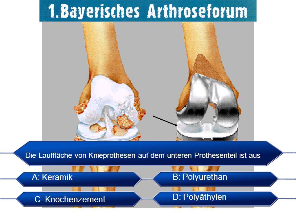 Die Lauffläche von Knieprothesen auf dem unteren Prothesenteil ist aus A: Keramik B: Polyurethan C: Knochenzement D: Polyäthylen