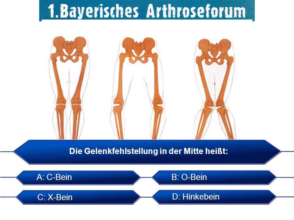 Die Gelenkfehlstellung in der Mitte heißt: A: C-BeinB: O-Bein C: X-Bein D: Hinkebein