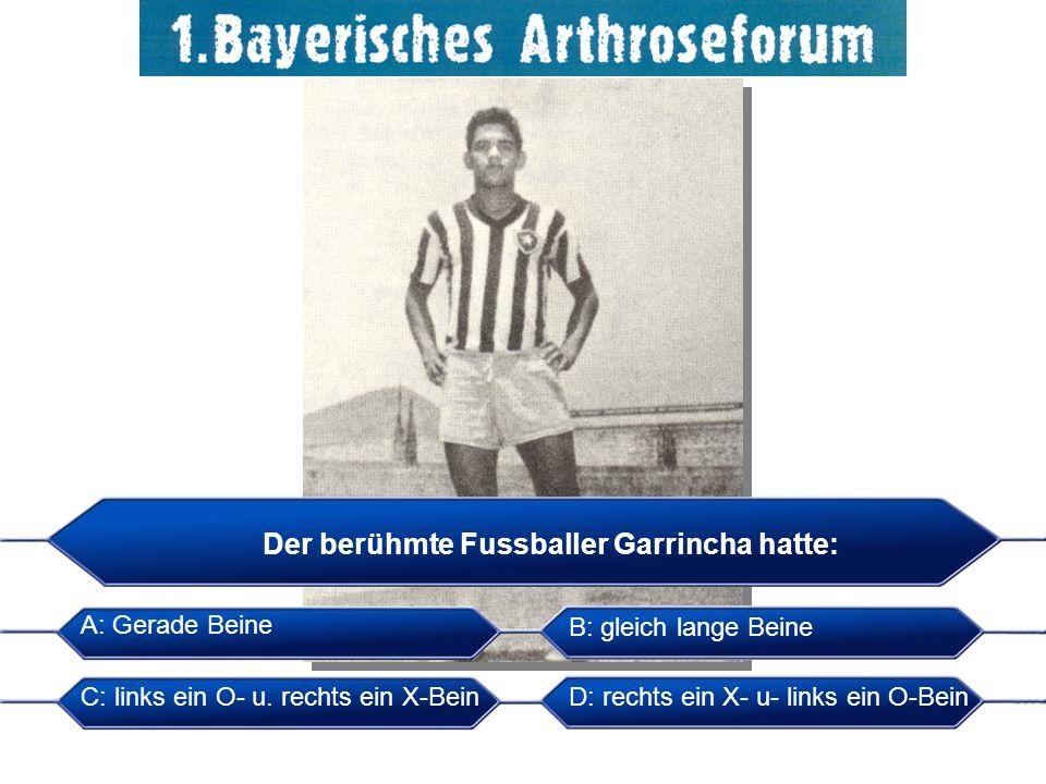 Der berühmte Fussballer Garrincha hatte: A: Gerade Beine B: gleich lange Beine C: links ein O- u. rechts ein X-BeinD: rechts ein X- u- links ein O-Bei