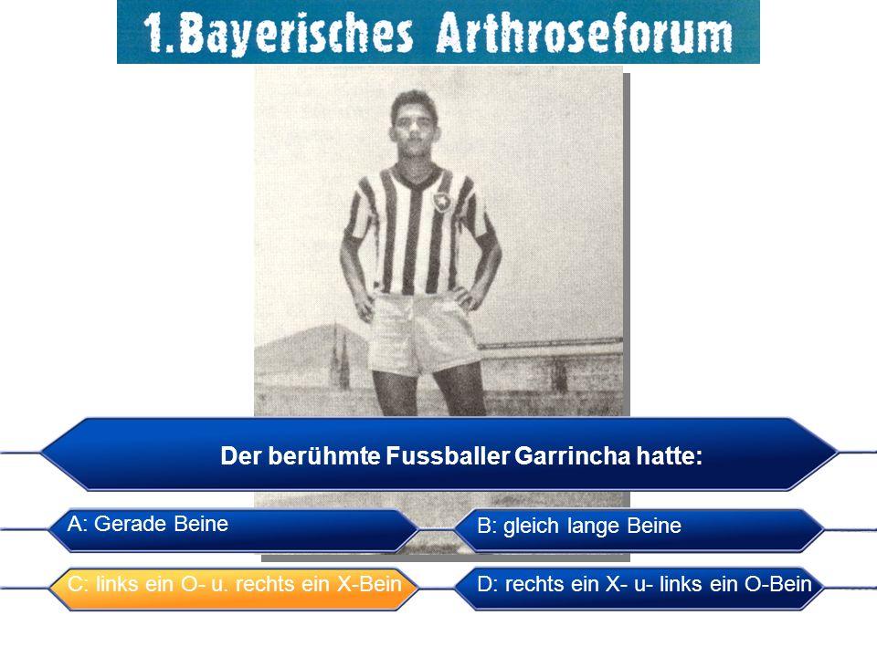 Der berühmte Fussballer Garrincha hatte: A: Gerade Beine C: links ein O- u. rechts ein X-Bein B: gleich lange Beine D: rechts ein X- u- links ein O-Be