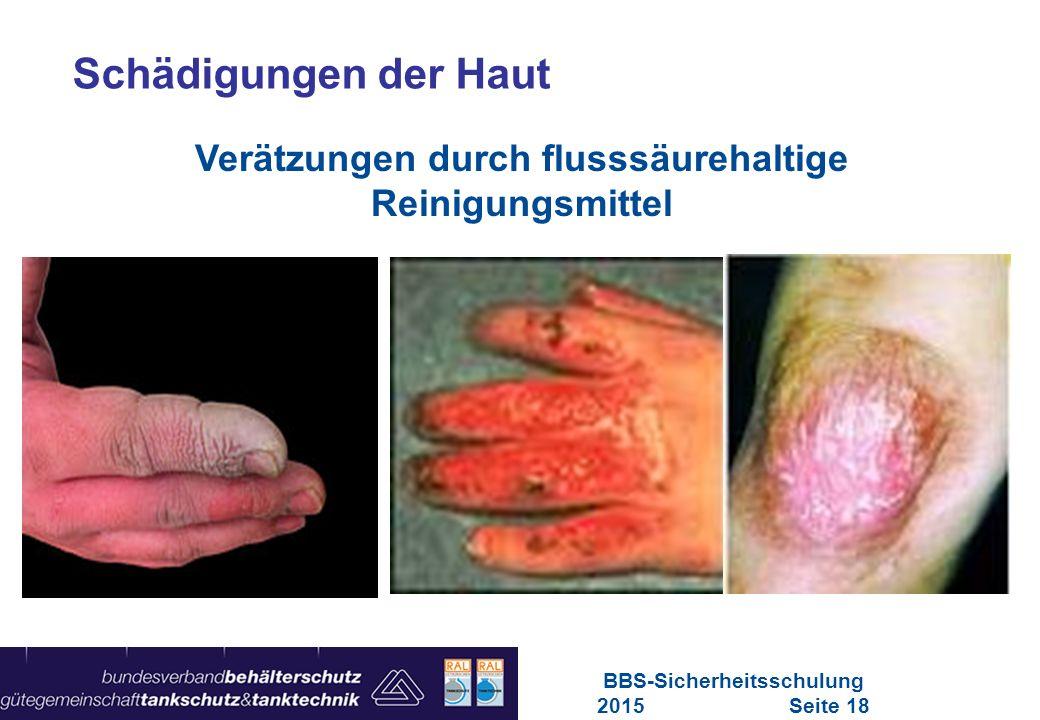 Maschinen in Europa Vorschriften-Übersicht für Maschinen Schädigungen der Haut Verätzungen durch flusssäurehaltige Reinigungsmittel BBS-Sicherheitssch
