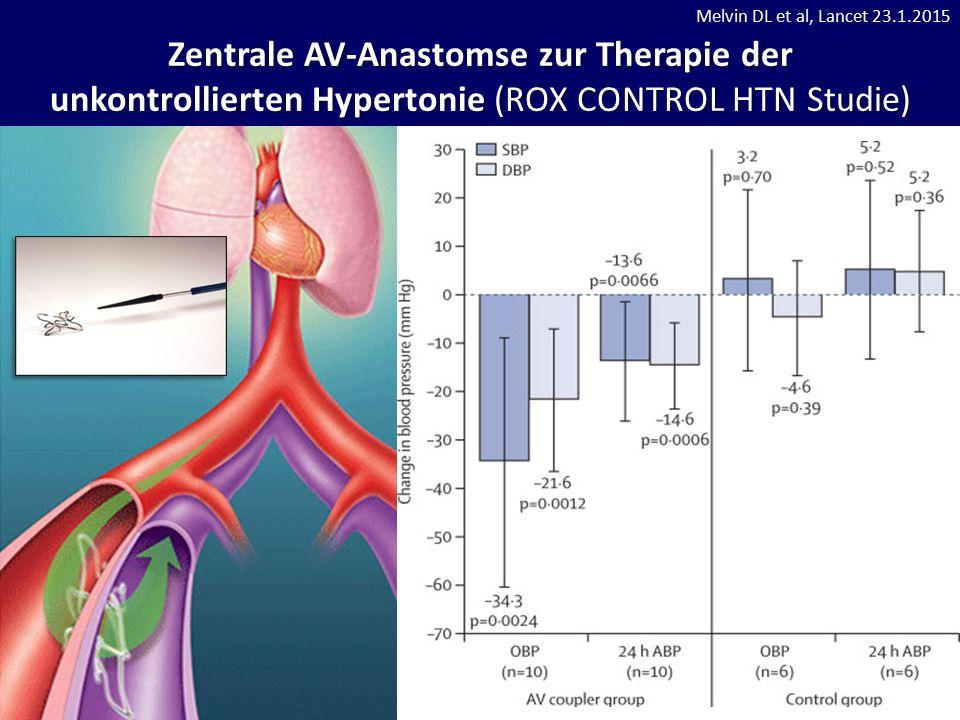 Zentrale AV-Anastomse zur Therapie der unkontrollierten Hypertonie (ROX CONTROL HTN Studie) Melvin DL et al, Lancet 23.1.2015