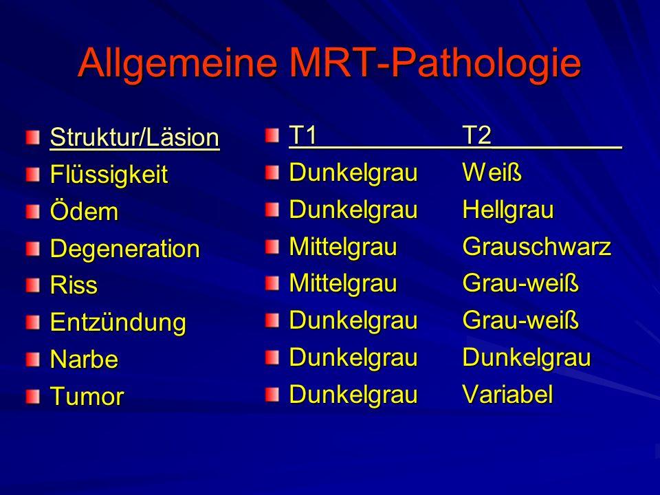 Allgemeine MRT-Pathologie Struktur/LäsionFlüssigkeitÖdemDegenerationRissEntzündungNarbeTumor T1T2_________ DunkelgrauWeiß DunkelgrauHellgrau Mittelgra