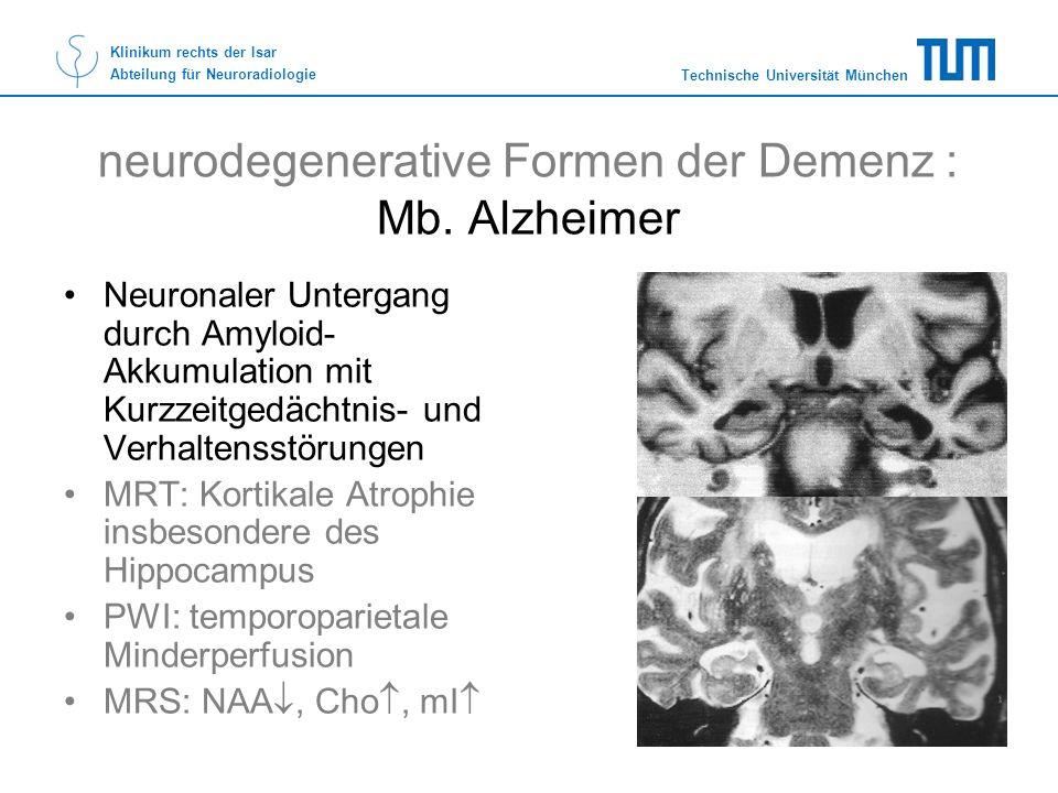 Technische Universität München Klinikum rechts der Isar Abteilung für Neuroradiologie neurodegenerative Formen der Demenz : Mb. Alzheimer Neuronaler U