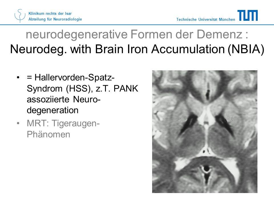 Technische Universität München Klinikum rechts der Isar Abteilung für Neuroradiologie neurodegenerative Formen der Demenz : Neurodeg. with Brain Iron