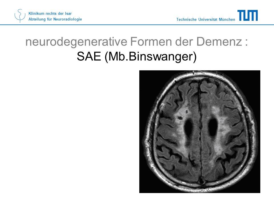 Technische Universität München Klinikum rechts der Isar Abteilung für Neuroradiologie neurodegenerative Formen der Demenz : SAE (Mb.Binswanger)