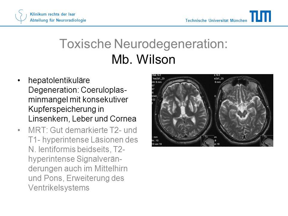 Technische Universität München Klinikum rechts der Isar Abteilung für Neuroradiologie Toxische Neurodegeneration: Mb. Wilson hepatolentikuläre Degener