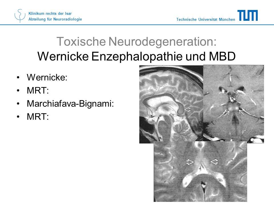 Technische Universität München Klinikum rechts der Isar Abteilung für Neuroradiologie Toxische Neurodegeneration: Wernicke Enzephalopathie und MBD Wer