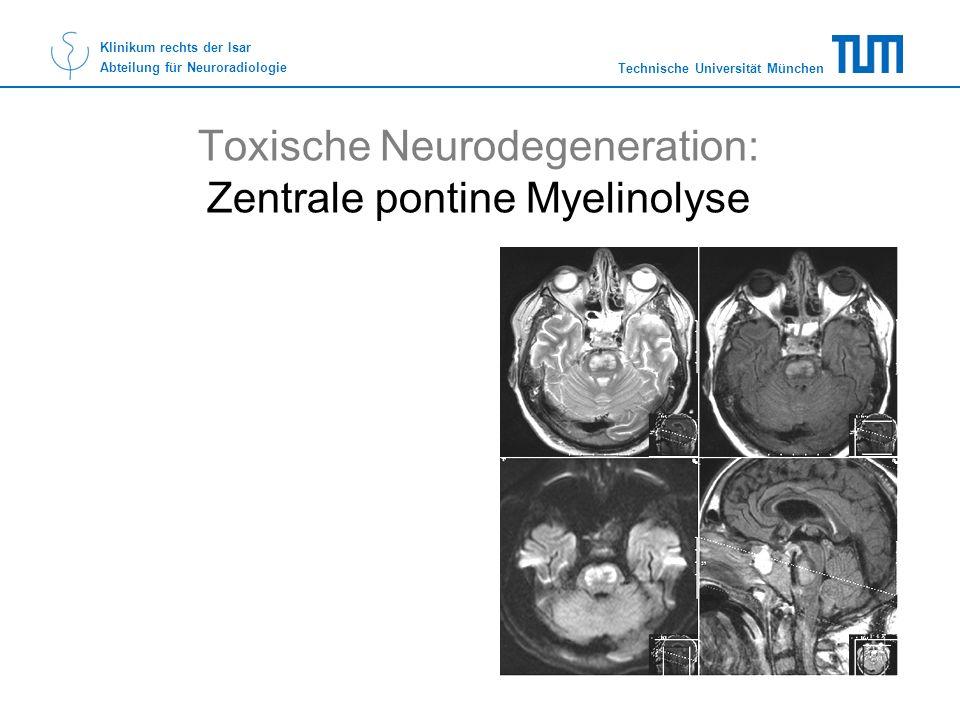 Technische Universität München Klinikum rechts der Isar Abteilung für Neuroradiologie Toxische Neurodegeneration: Zentrale pontine Myelinolyse