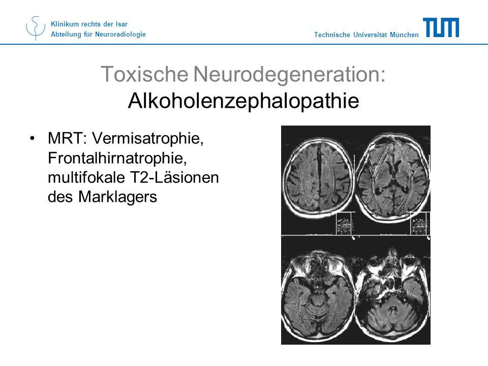 Technische Universität München Klinikum rechts der Isar Abteilung für Neuroradiologie Toxische Neurodegeneration: Alkoholenzephalopathie MRT: Vermisat