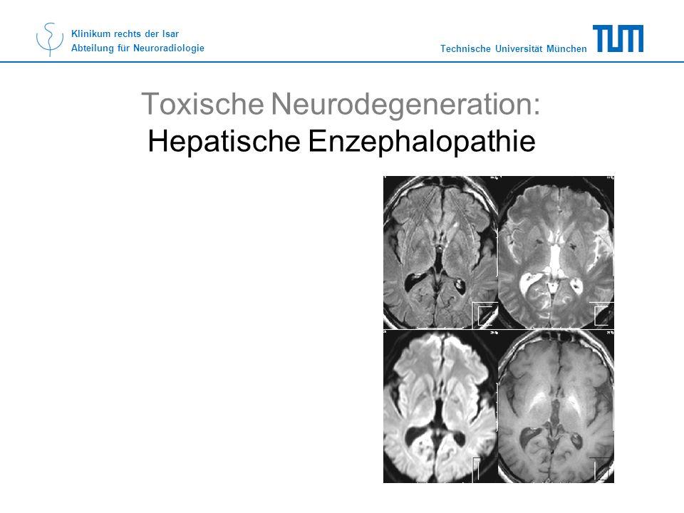 Technische Universität München Klinikum rechts der Isar Abteilung für Neuroradiologie Toxische Neurodegeneration: Hepatische Enzephalopathie