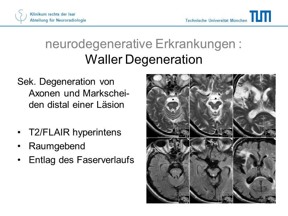 Technische Universität München Klinikum rechts der Isar Abteilung für Neuroradiologie neurodegenerative Erkrankungen : Waller Degeneration Sek. Degene