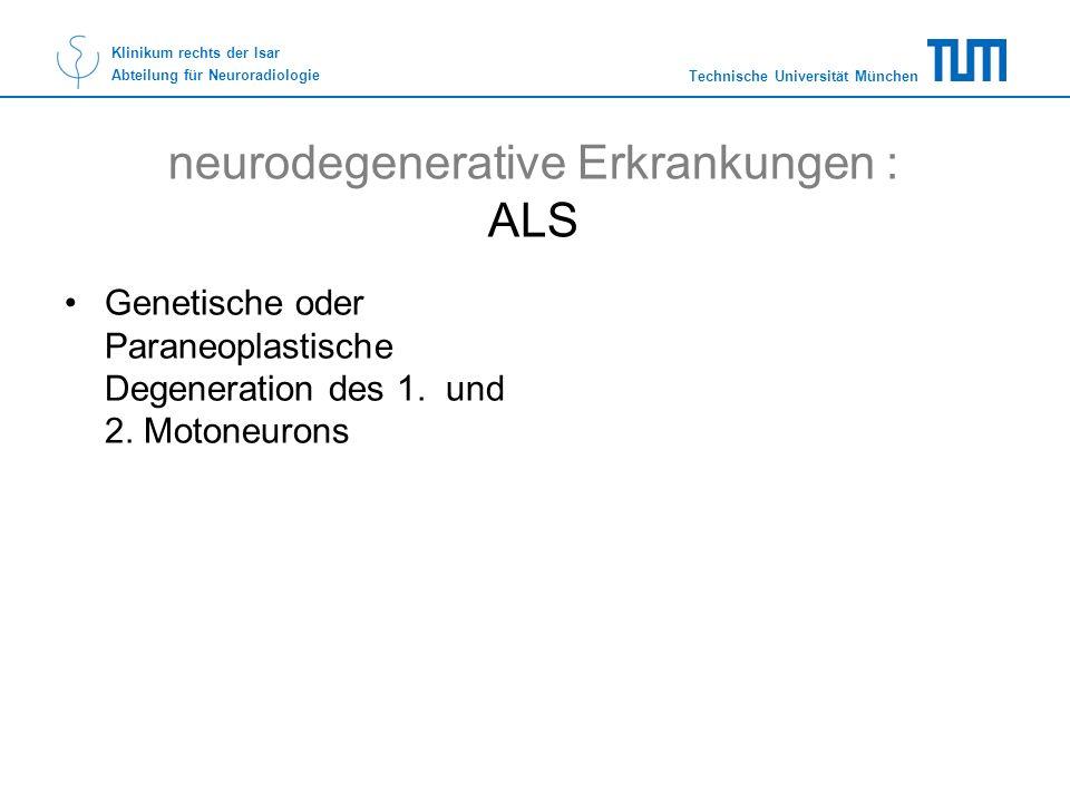 Technische Universität München Klinikum rechts der Isar Abteilung für Neuroradiologie neurodegenerative Erkrankungen : ALS Genetische oder Paraneoplas