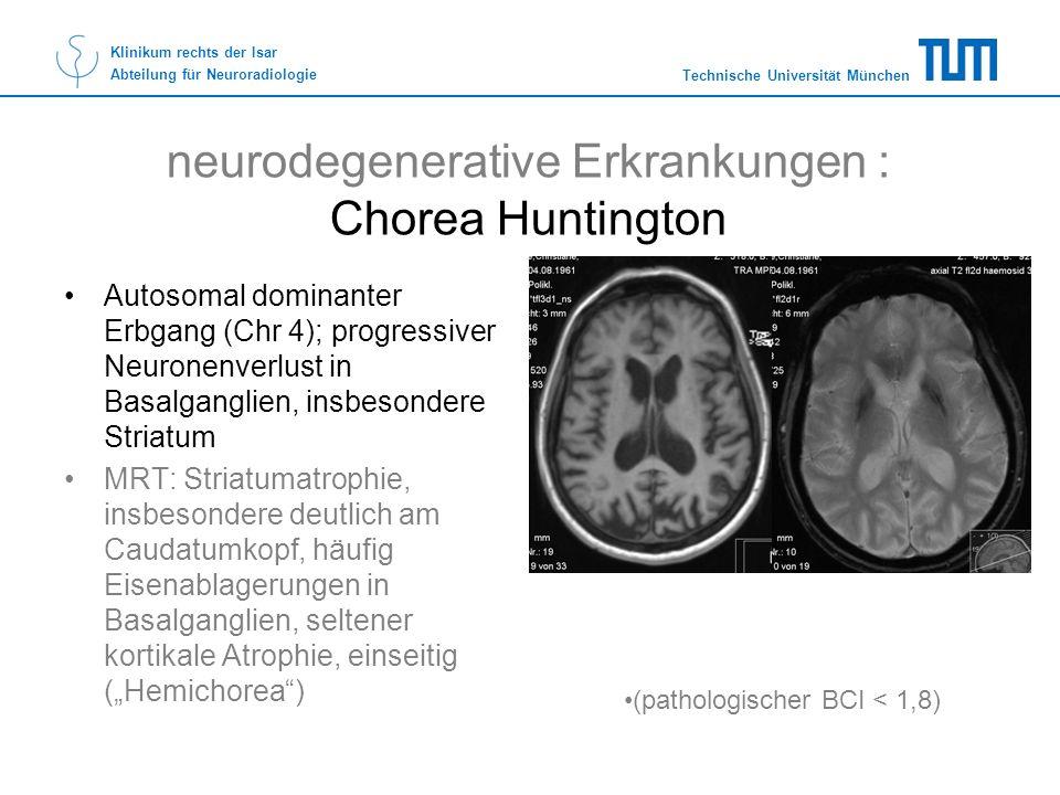 Technische Universität München Klinikum rechts der Isar Abteilung für Neuroradiologie neurodegenerative Erkrankungen : Chorea Huntington Autosomal dom