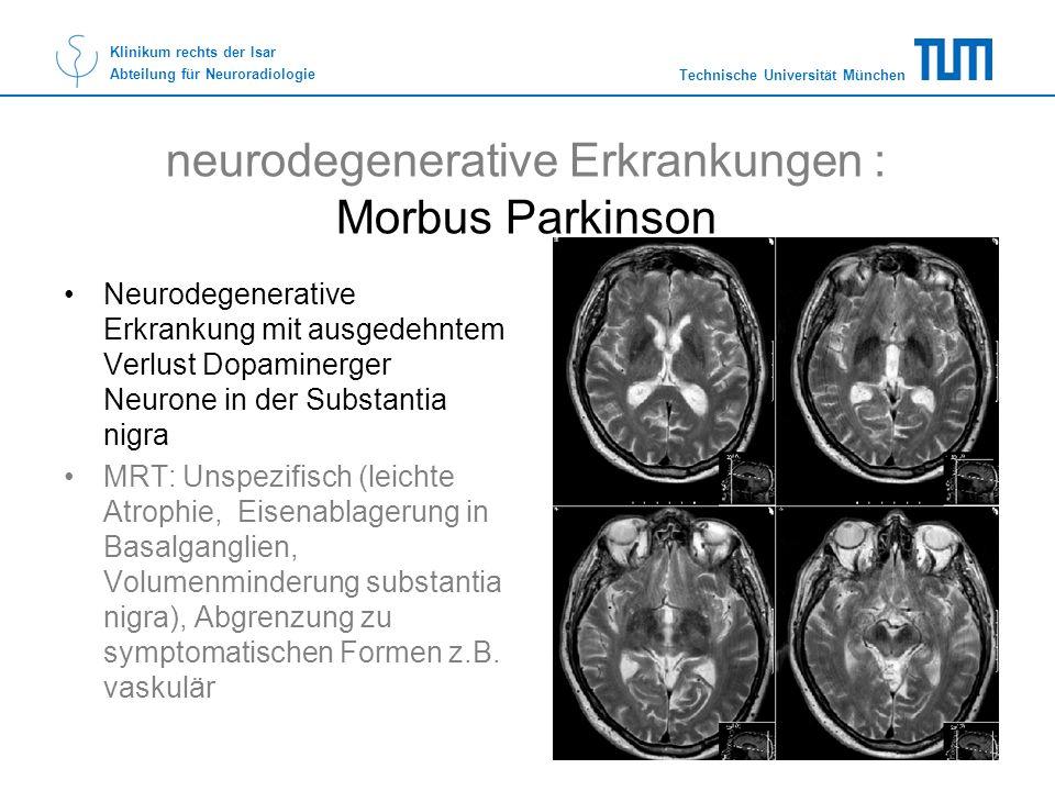 Technische Universität München Klinikum rechts der Isar Abteilung für Neuroradiologie neurodegenerative Erkrankungen : Morbus Parkinson Neurodegenerat