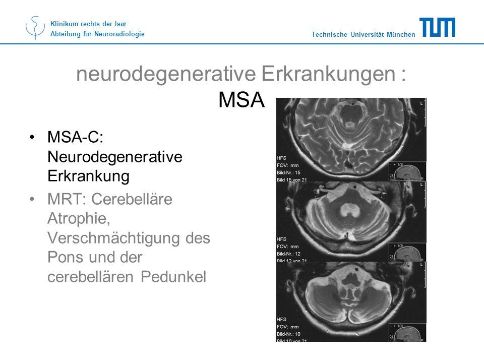 Technische Universität München Klinikum rechts der Isar Abteilung für Neuroradiologie neurodegenerative Erkrankungen : MSA MSA-C: Neurodegenerative Er