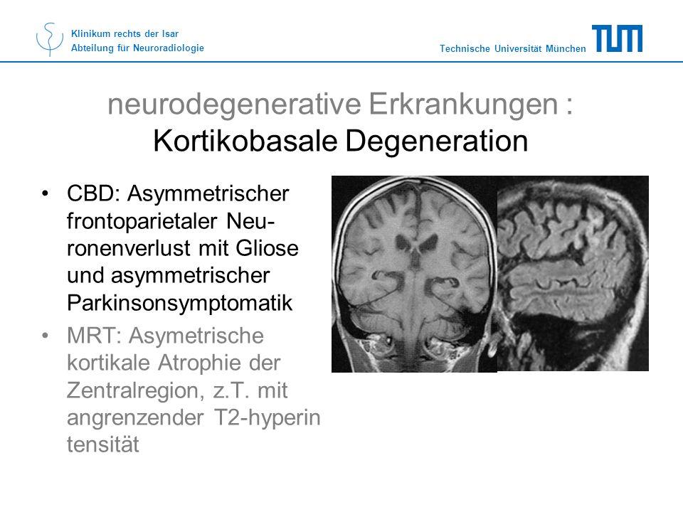 Technische Universität München Klinikum rechts der Isar Abteilung für Neuroradiologie neurodegenerative Erkrankungen : Kortikobasale Degeneration CBD: