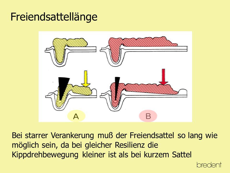 Dynamik bei einer Klammerprothese 1. Schereneffekt Mit gegenläufigen Kippungen 2.