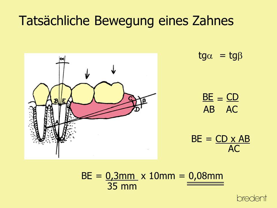 Dynamik eines überkronten Zahnes mit Schubverteilungsarm Kaukräfte werden durch den Schubverteiler auf die gesamte Zahnachse in Horizontalkräfte umgewandelt