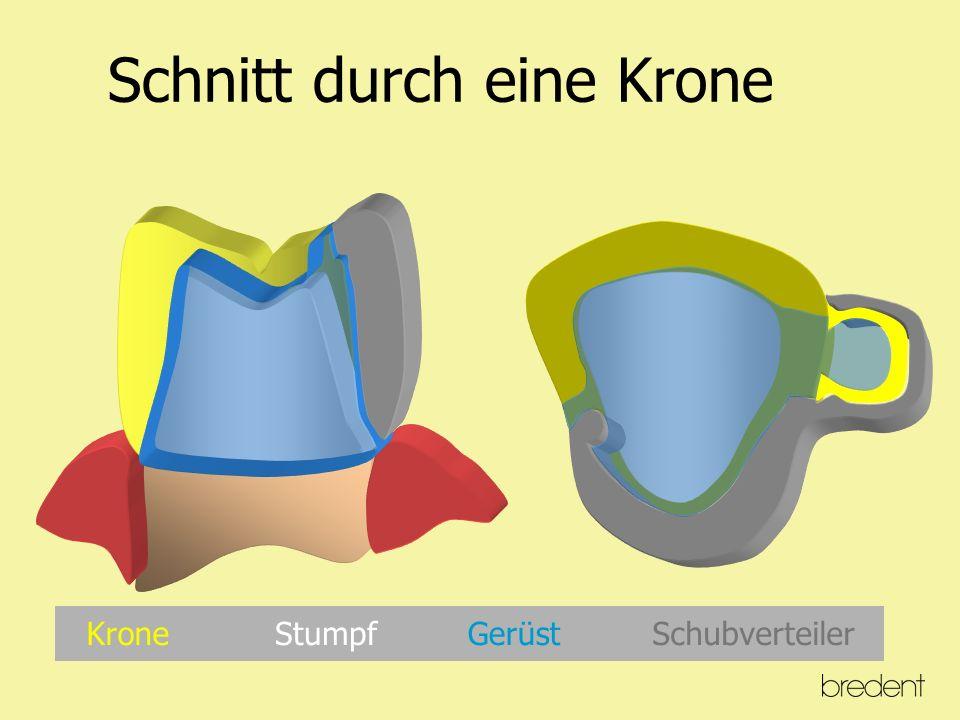 Tatsächliche Bewegung eines Zahnes tg  = tg  BE = CD AB AC BE = CD x AB AC BE = 0,3mm x 10mm = 0,08mm 35 mm