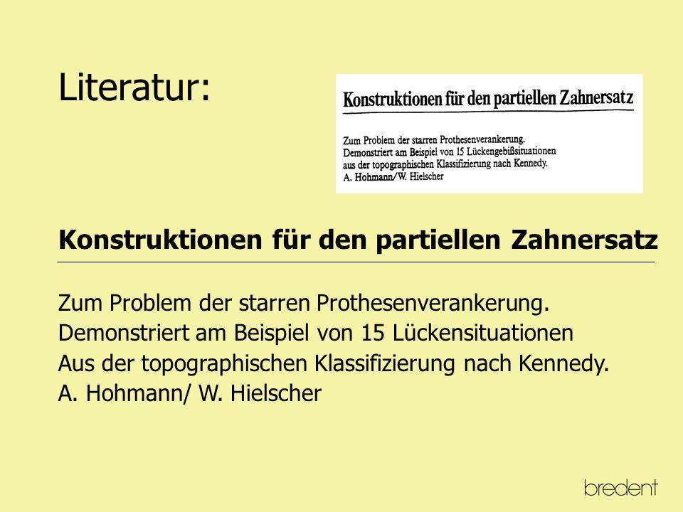 Literatur: Konuskronen Das rationelle Teleskopsystem Einführung in Klinik und Technik Karlheinz Körber