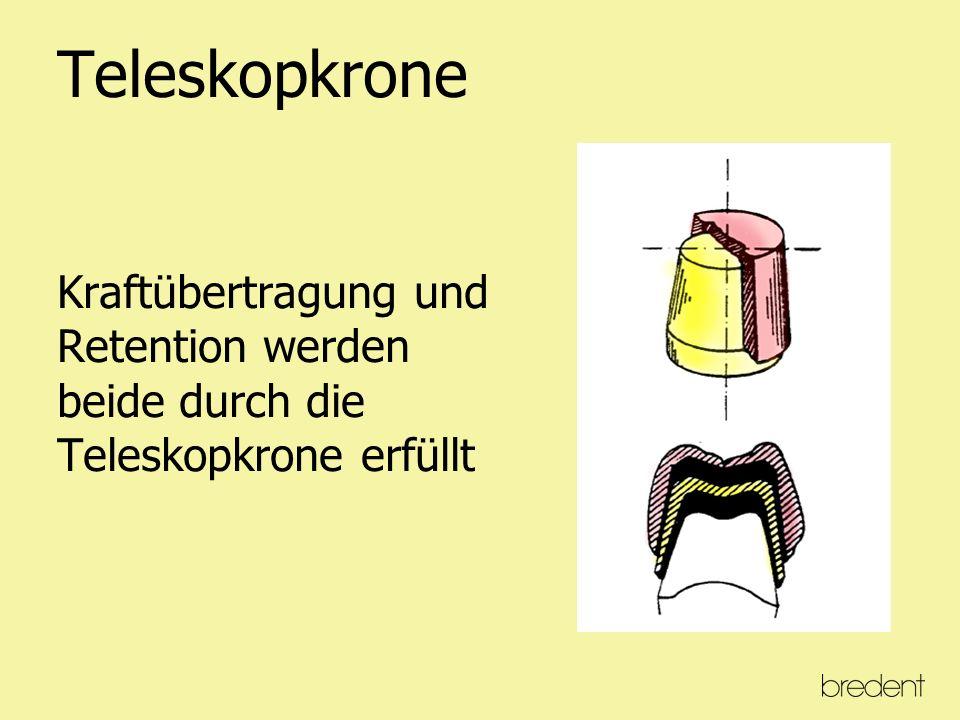 Dynamik eines Klammerzahnes Vertikale und horizontale Kaukräfte werden durch die Klammerauflage in eine Kippbewegung des Zahnes umgewandelt