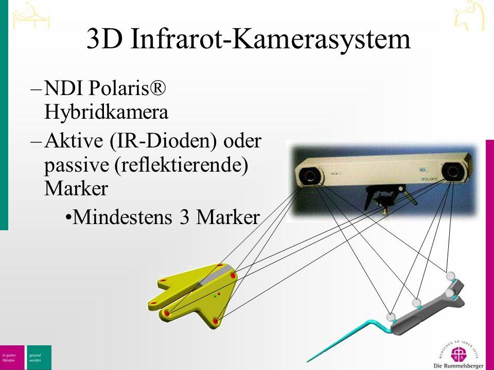 3D Infrarot-Kamerasystem –NDI Polaris® Hybridkamera –Aktive (IR-Dioden) oder passive (reflektierende) Marker Mindestens 3 Marker