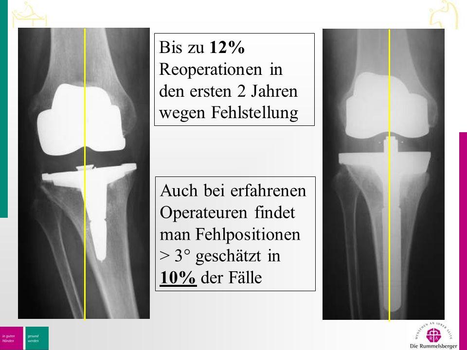 Bis zu 12% Reoperationen in den ersten 2 Jahren wegen Fehlstellung Auch bei erfahrenen Operateuren findet man Fehlpositionen > 3° geschätzt in 10% der Fälle