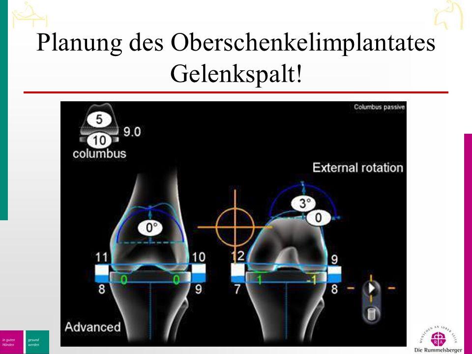 Planung des Oberschenkelimplantates Gelenkspalt!