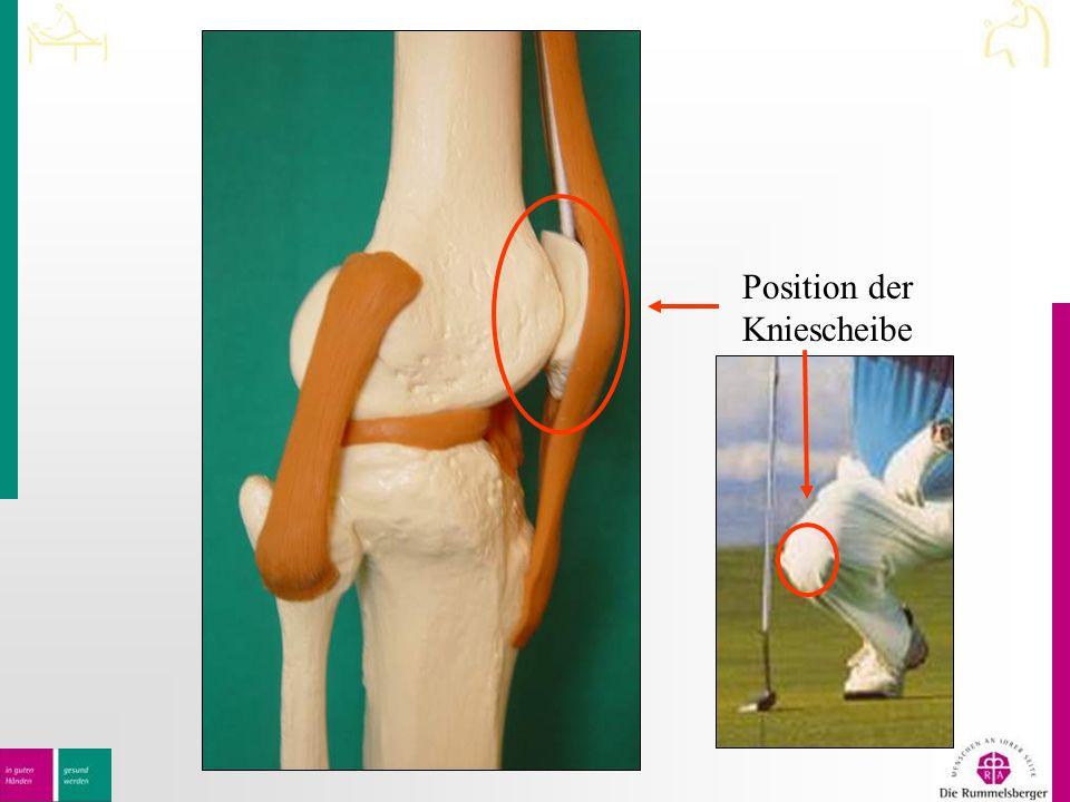 Position der Kniescheibe