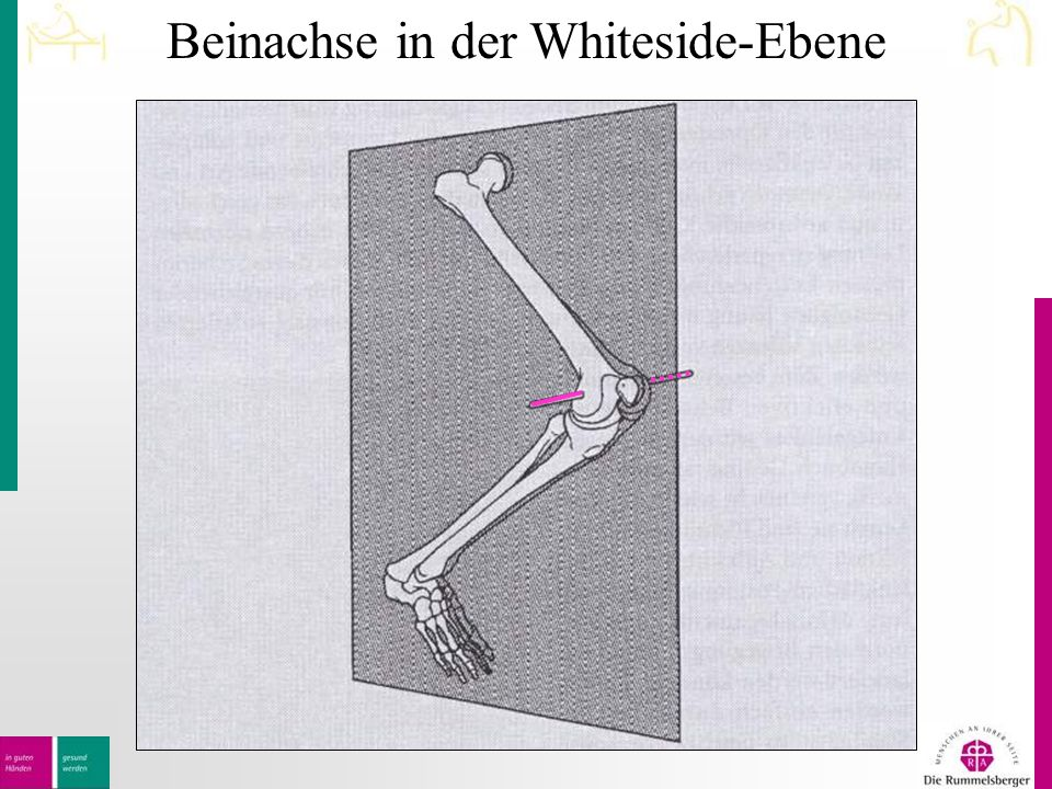 Beinachse in der Whiteside-Ebene