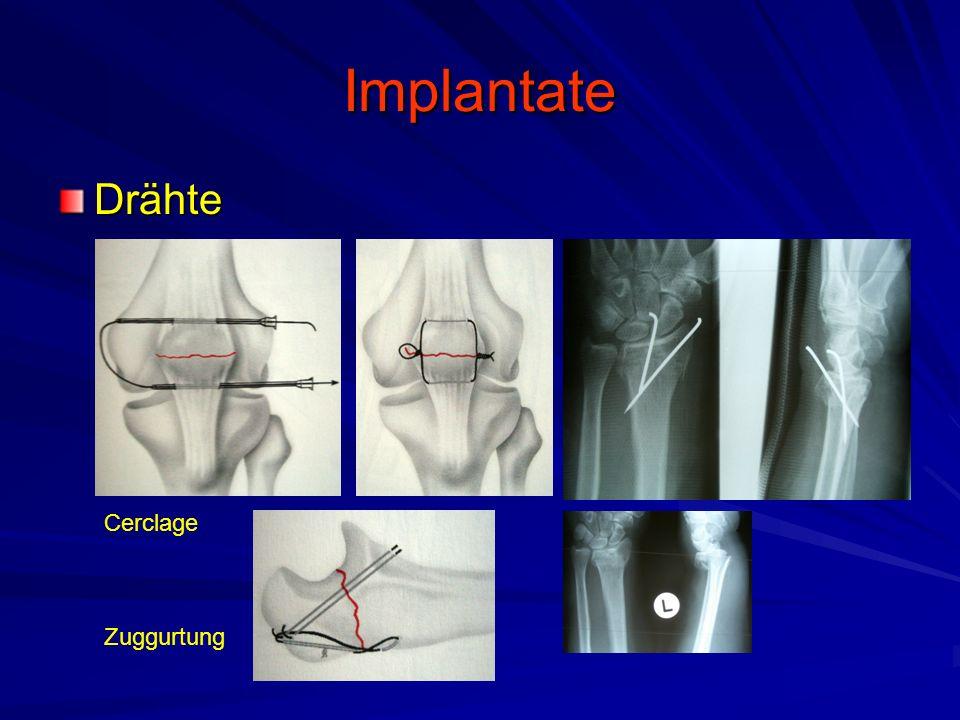 Implantate Drähte Cerclage Zuggurtung