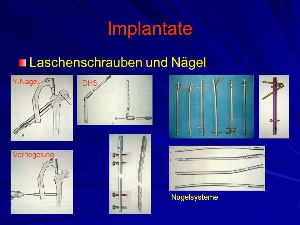 Implantate Laschenschrauben und Nägel Y-Nagel DHS Verriegelung Nagelsysteme