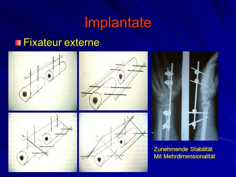 Implantate Fixateur externe Zunehmende Stabilität Mit Mehrdimensionalität