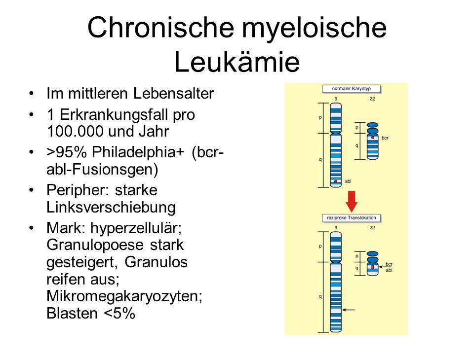 Chronische myeloische Leukämie Im mittleren Lebensalter 1 Erkrankungsfall pro 100.000 und Jahr >95% Philadelphia+ (bcr- abl-Fusionsgen) Peripher: star