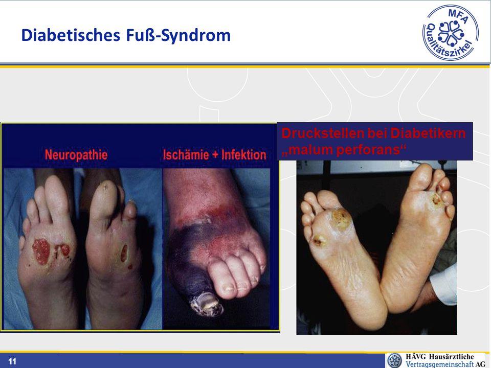 """11 Druckstellen bei Diabetikern """"malum perforans"""" Diabetisches Fuß-Syndrom"""