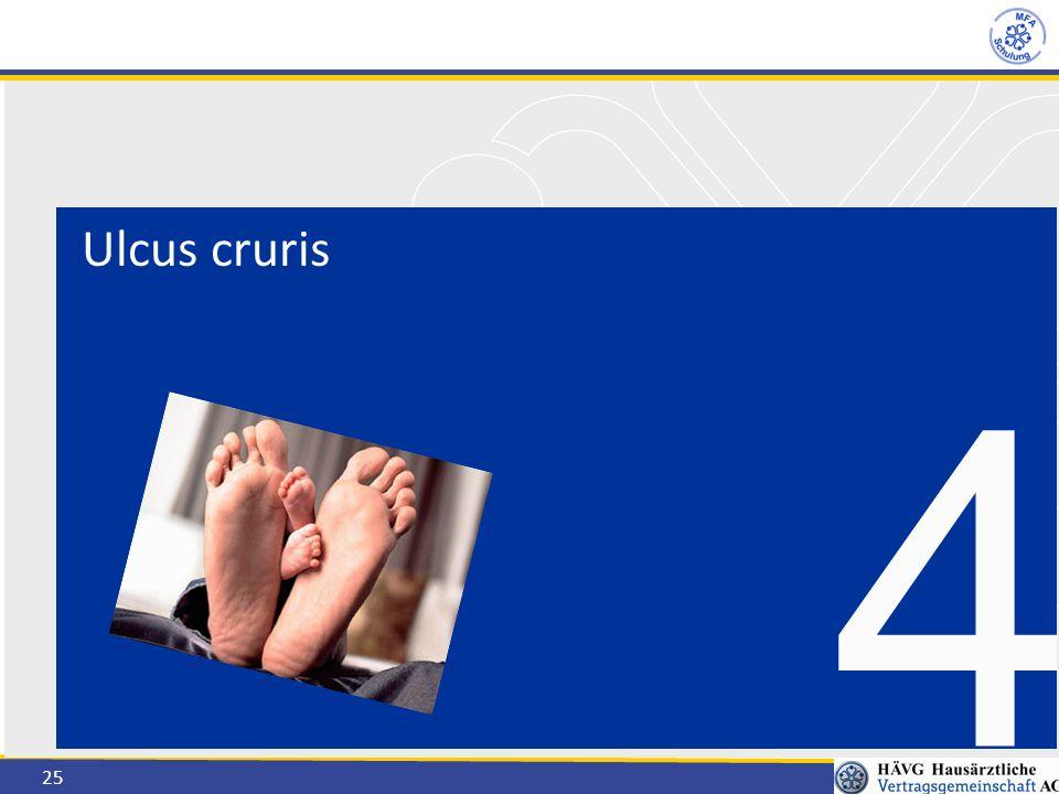 25 Ulcus cruris 4
