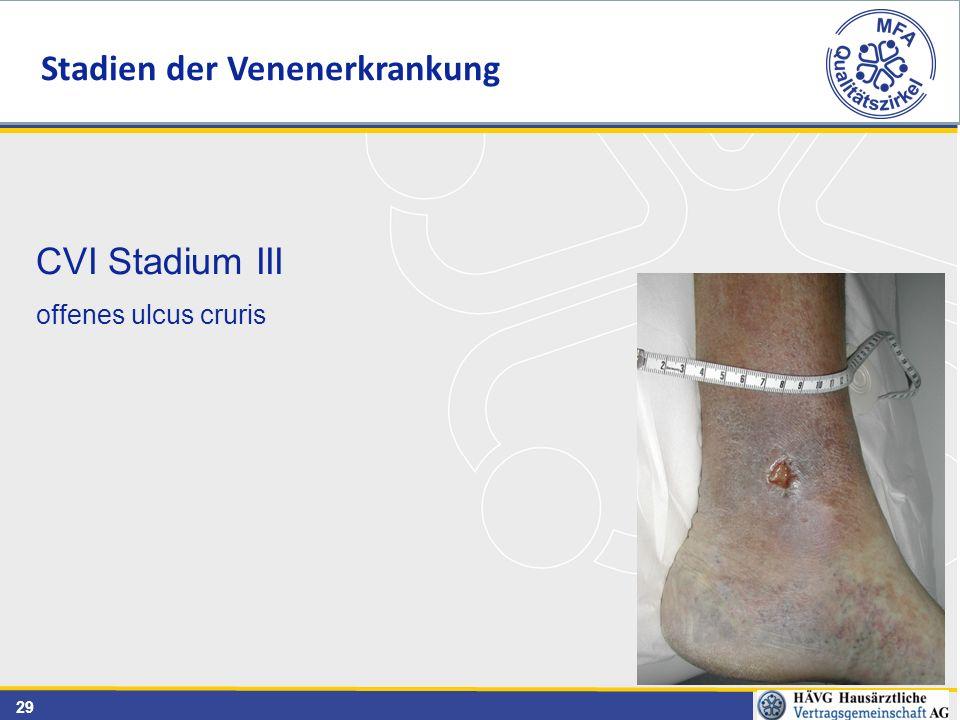 29 CVI Stadium III offenes ulcus cruris Stadien der Venenerkrankung