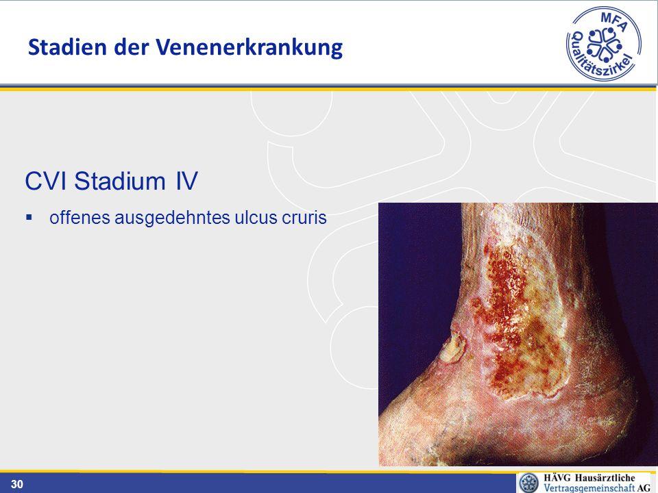 30 CVI Stadium IV  offenes ausgedehntes ulcus cruris Stadien der Venenerkrankung