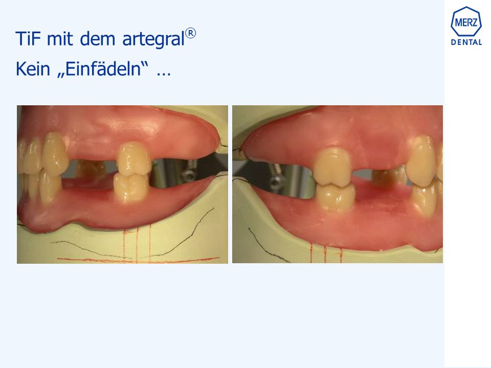 """TiF mit dem artegral ® Kein """"Einfädeln …"""
