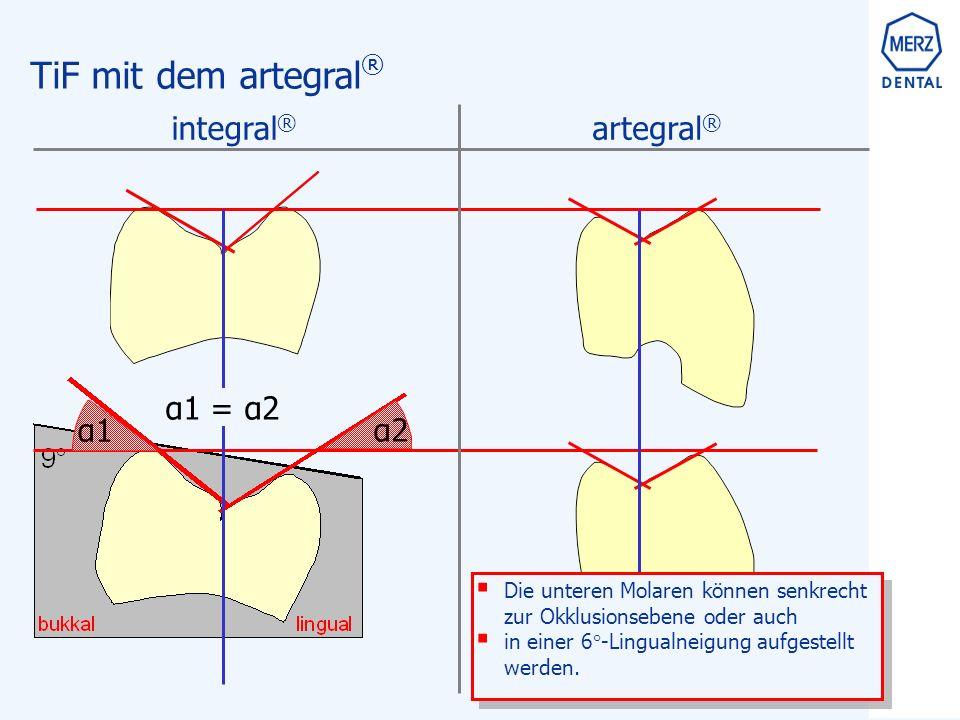 TiF mit dem artegral ®  Die unteren Molaren können senkrecht zur Okklusionsebene oder auch  in einer 6°-Lingualneigung aufgestellt werden.