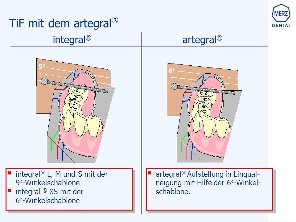 TiF mit dem artegral ®  artegral ® Aufstellung in Lingual- neigung mit Hilfe der 6°-Winkel- schablone.