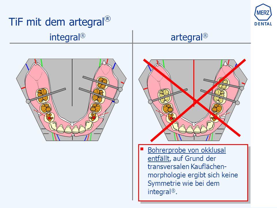 TiF mit dem artegral ®  Bohrerprobe von okklusal entfällt, auf Grund der transversalen Kauflächen- morphologie ergibt sich keine Symmetrie wie bei dem integral ®.