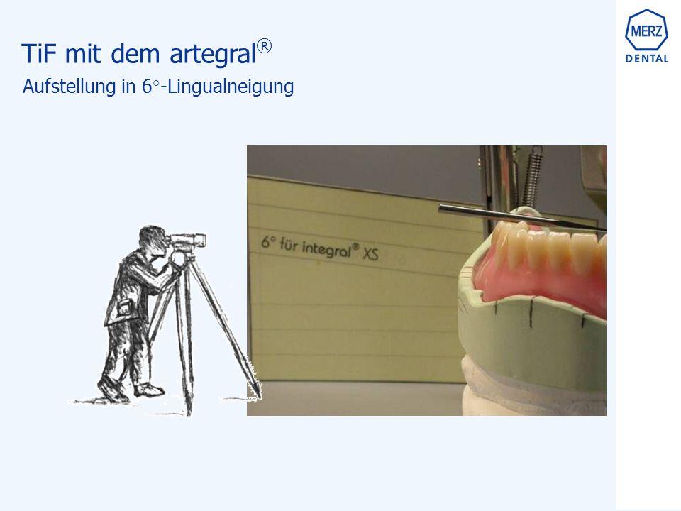 TiF mit dem artegral ® Aufstellung in 6°-Lingualneigung