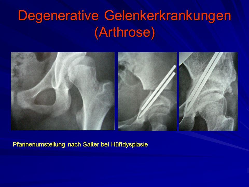 Degenerative Gelenkerkrankungen (Arthrose) Pfannenumstellung nach Salter bei Hüftdysplasie