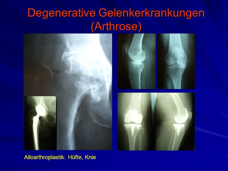 Degenerative Gelenkerkrankungen (Arthrose) Alloarthroplastik: Hüfte, Knie