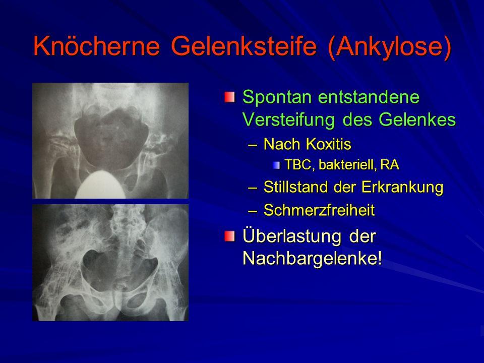 Degenerative Gelenkerkrankungen (Arthrose) Röntgendiagnostik –Gelenkspaltminderung (exzentrisch) –Belastungsaufnahme –Verdichtung der Knochenstruktur Reaktive Sklerosierung des subchondralen Knochens –Geröllzysten –Reaktive Abstützreaktion Osteophyten an Gelenkrändern –Deformierung der Gelenkkörper Achfehlstellungen